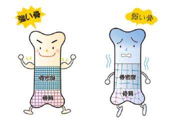 bone_diagnosis_06.png